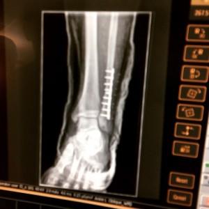 Cyborg Life - 9 Screws & A Plate